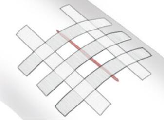 Схема наложения пластыря Стрипс