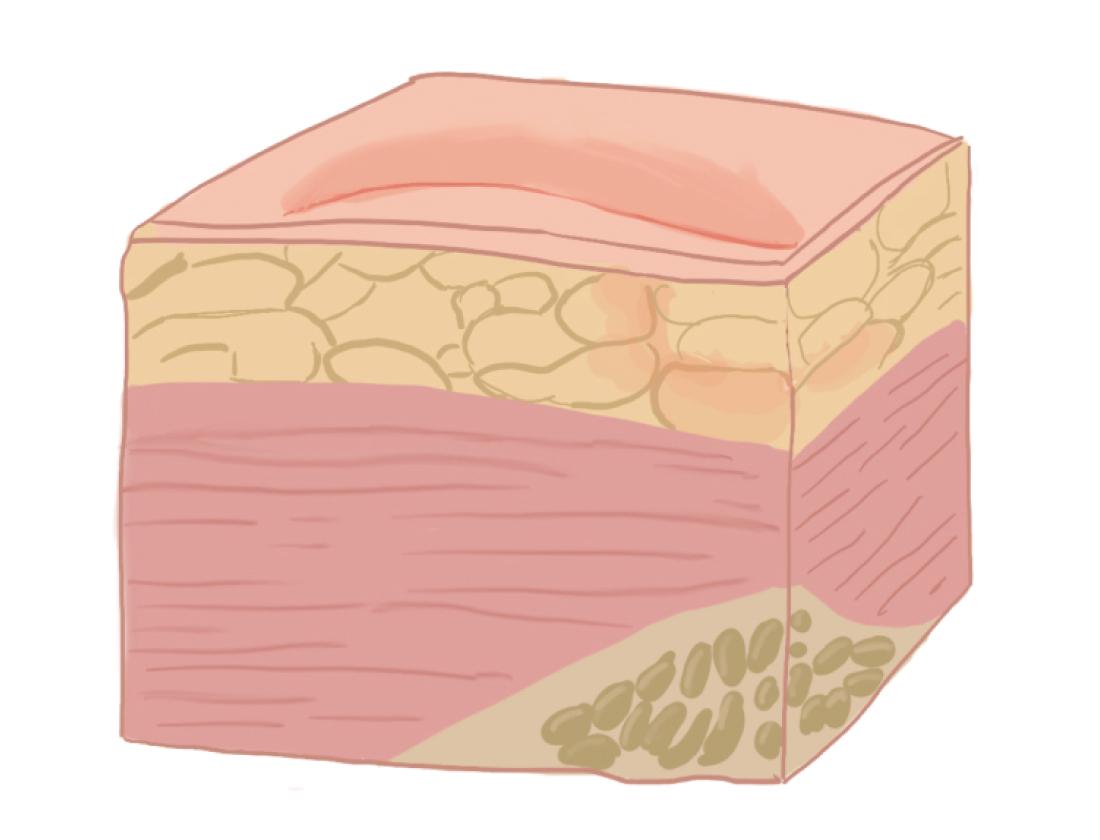 Рисунок: поражение тканей на I стадии пролежня