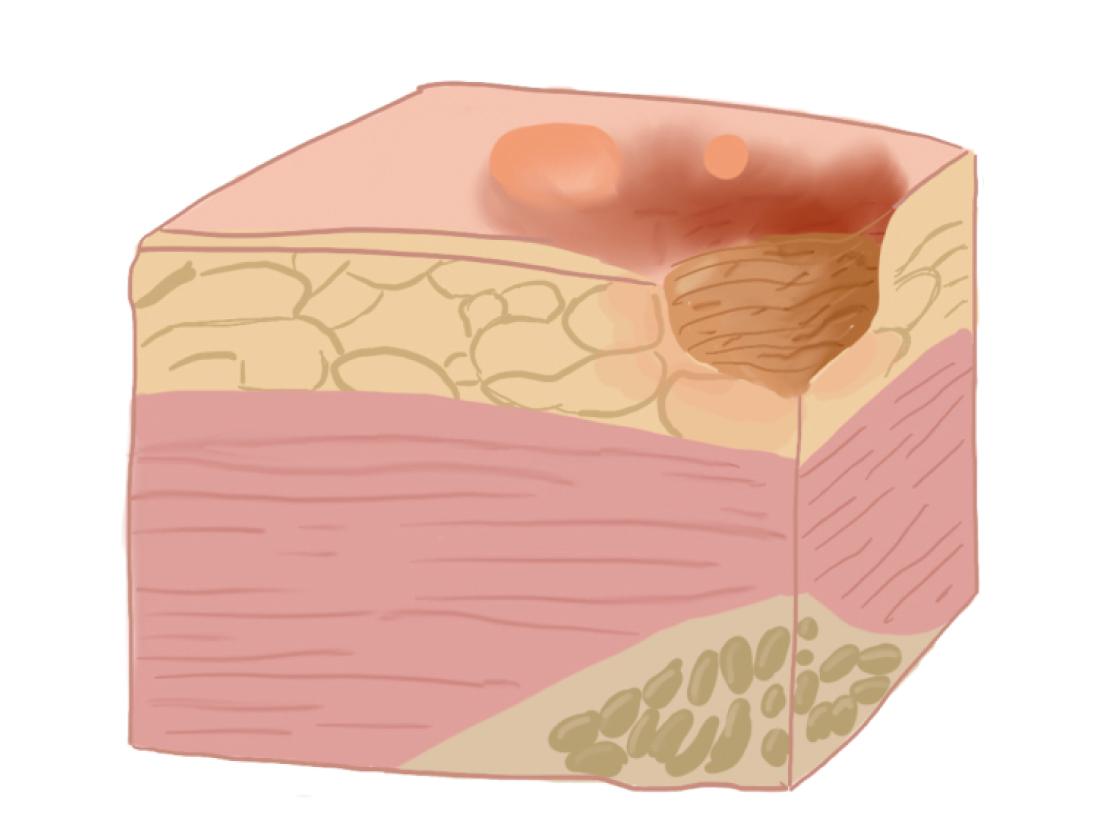 Рисунок: поражение тканей на II стадии пролежней