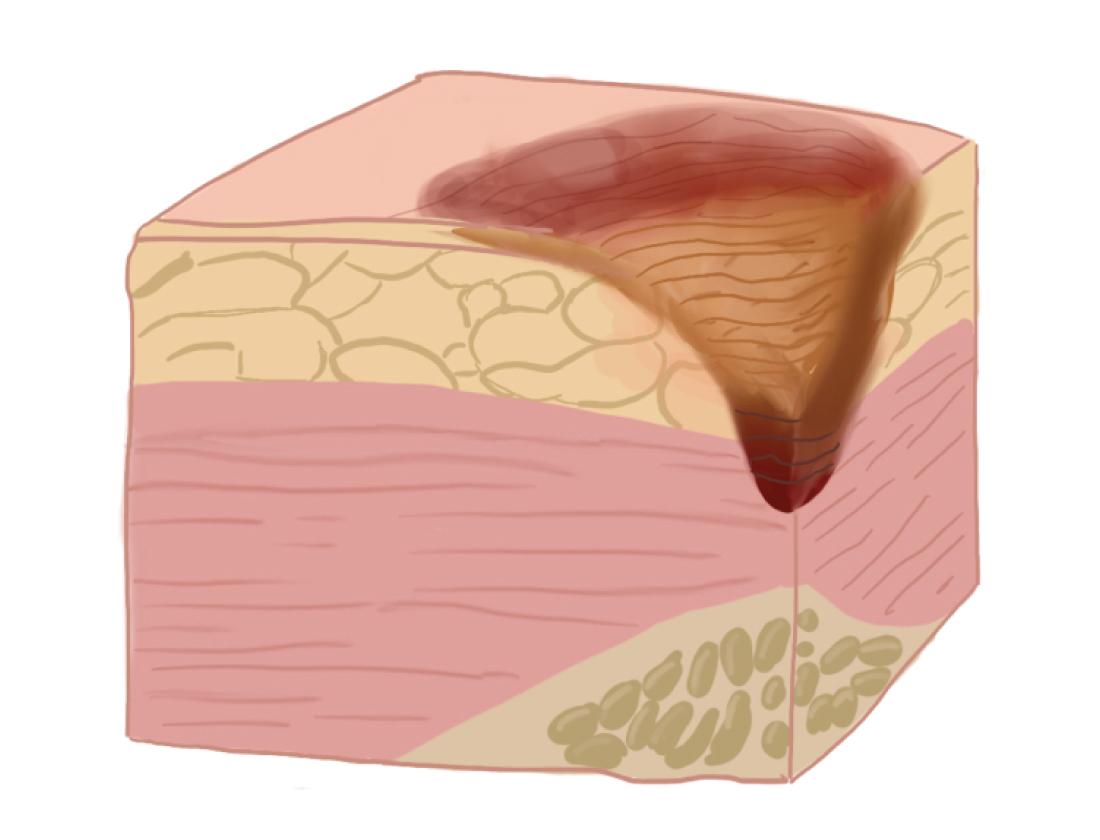 Рисунок: поражение тканей на III стадии пролежней