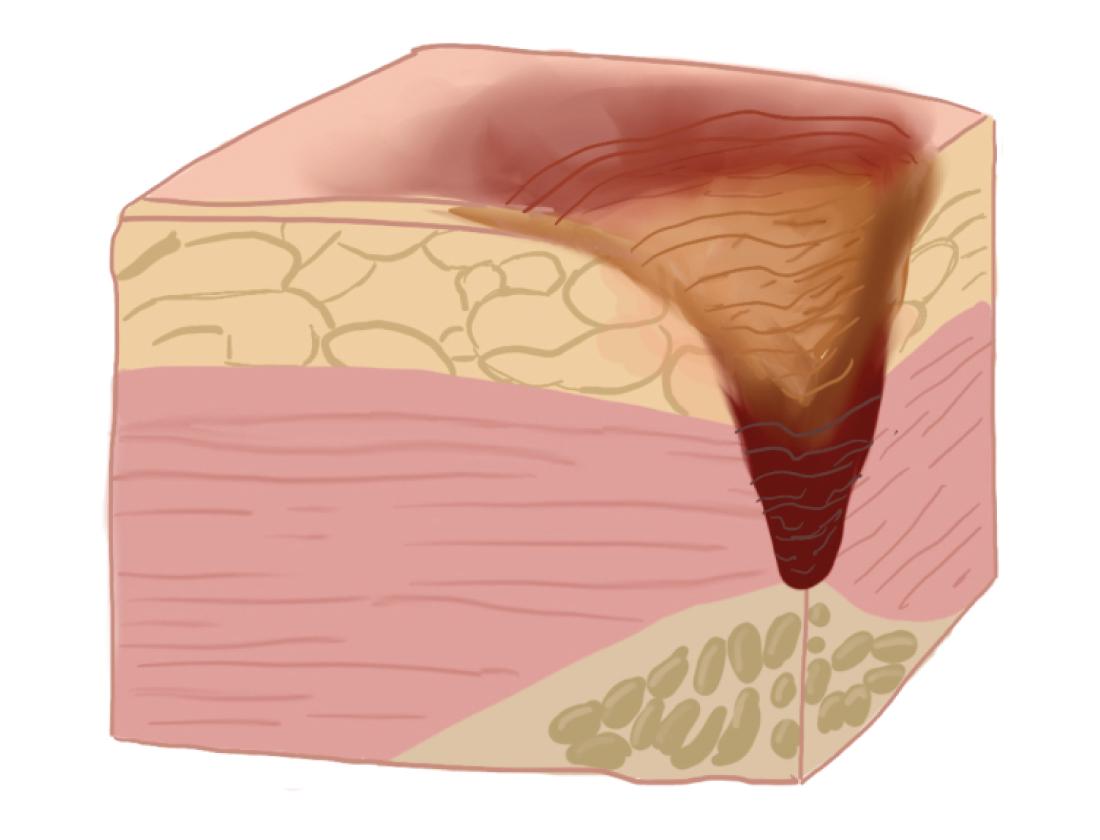 Рисунок: поражение тканей на IV стадии пролежней