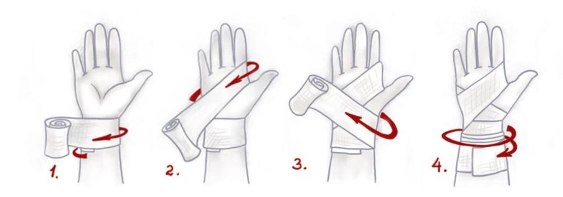 Техника наложения фиксирующей повязки запястья