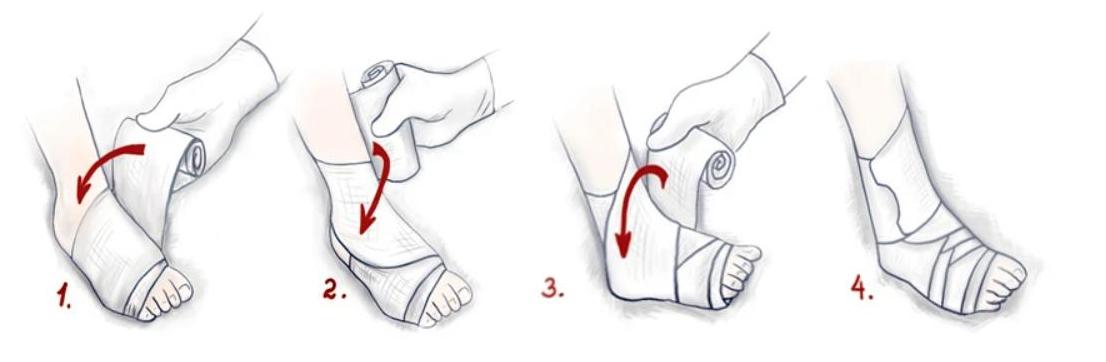 Техника наложения фиксирующей повязки на голеностоп